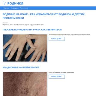 ArchiveBay.com - rodinkl.ru - Родинки на коже - как избавиться от родинок и других проблем кожи