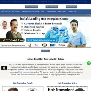 Hair Transplant in Jaipur - Hair Transplant Cost in Jaipur -
