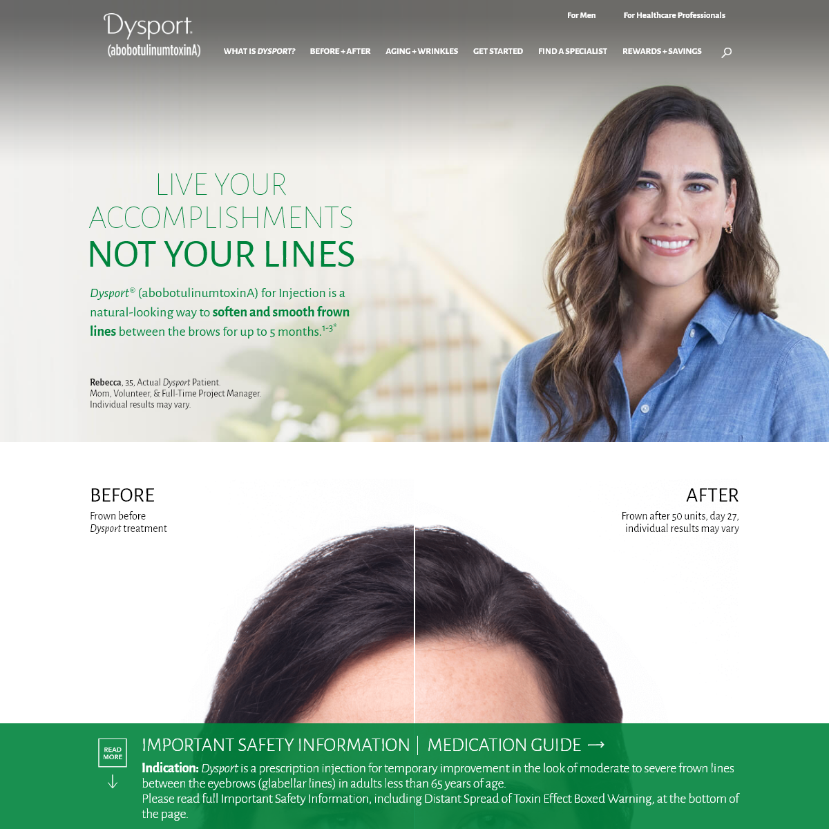 Treatment for Lines Between the Brows - Dysport®